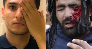 محمد عساف الاحتلال يستهدف العين للتغطية على الجرائم التي يرتكبها بحق الشعب الفلسطيني